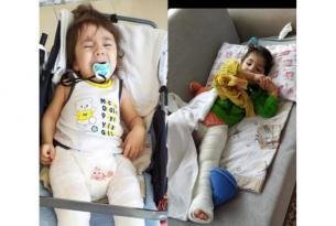 Urfa'da Cam Hastalığına Yakalanan Kardeşler Yardım Bekliyor